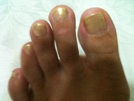 Perfect Nails VI